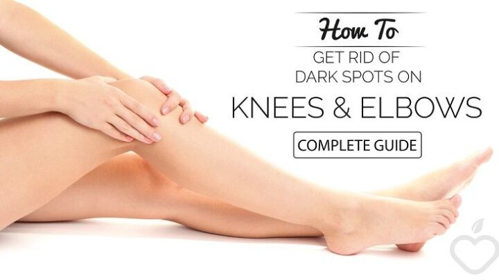 What Causes Dark Knees and How to Lighten Them Naturally